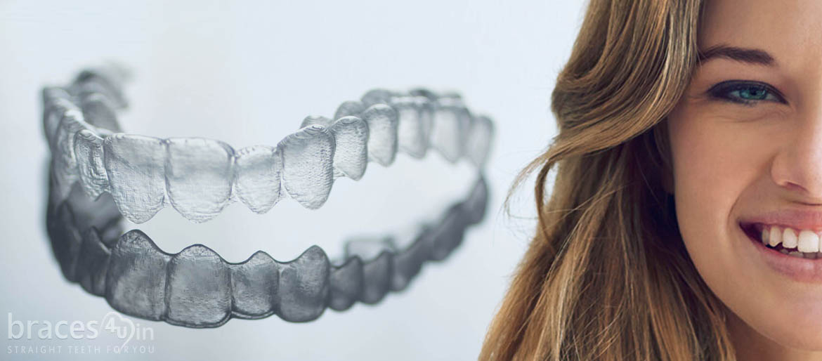 Orthodontics dental treatment clear aligners Braces4u trivandrum